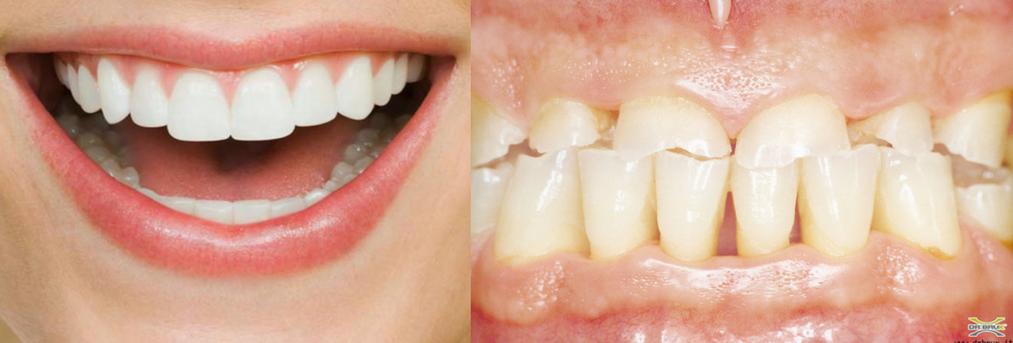 grind teeth