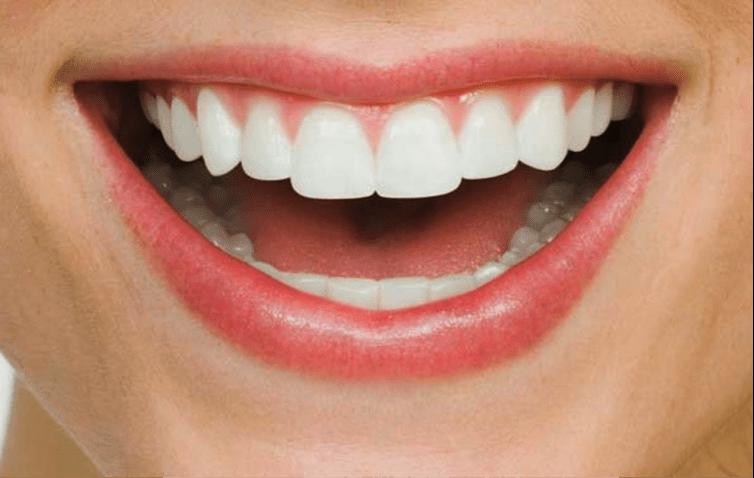 straight teeth no braces